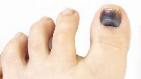 Uñas negras qué son y cómo tratarlas